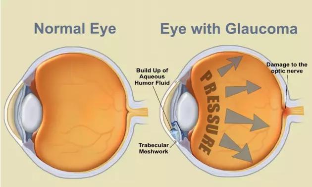 青光眼患者的受损视神经。