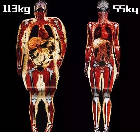 相同身高下,肥胖者与正常者皮下脂肪对比