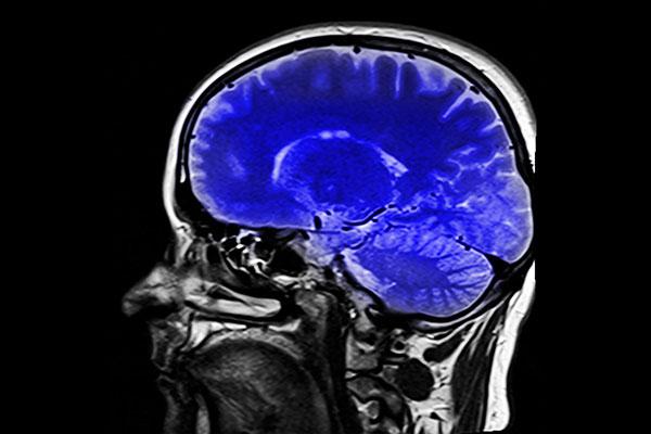 过去15年的大脑研究全错了!功能性磁共振成像技术算法错误