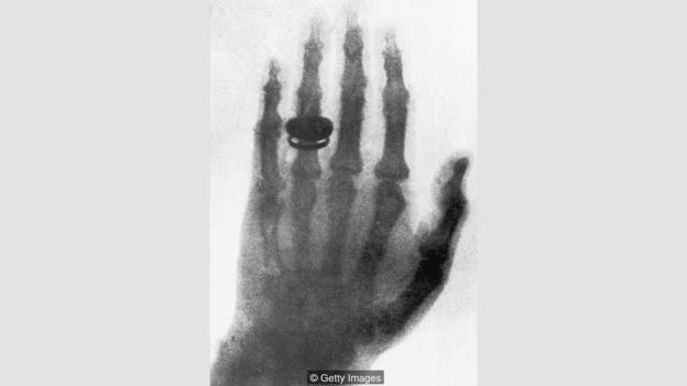 1895年,人类发现X射线的消息吸引了全世界的注意