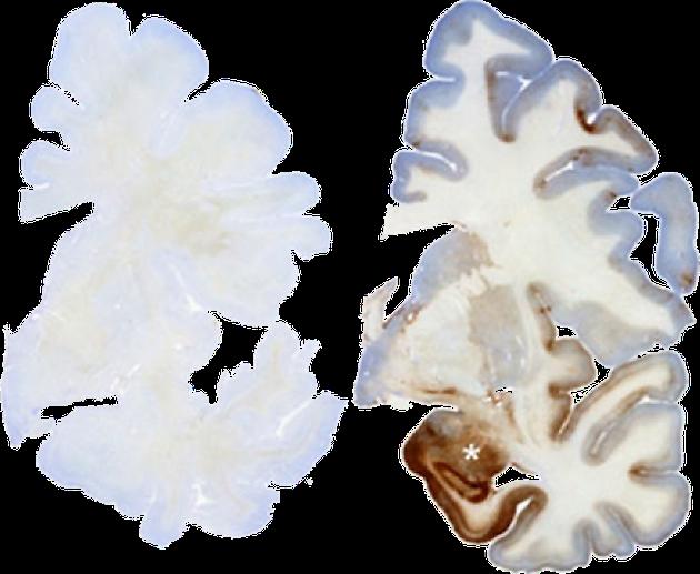 左图为正常大脑,右图深色区为Tau蛋白异常聚集