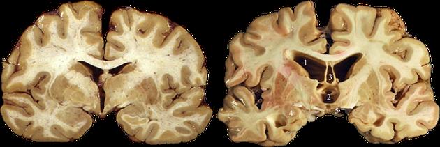左图为正常大脑,右图为CTE患者大脑