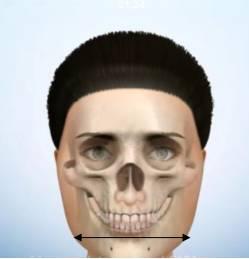 瘦脸:拔牙真的核心?流言v瘦脸减脂吗
