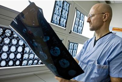 """科学家发明神奇""""胶水"""":人类进行头部移植或成真"""