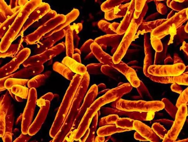 杆状的结核杆菌菌体(CDC)
