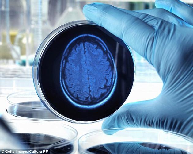 我们为什么是右撇子或左撇子?我们为什么会出现自闭症?人类大脑至今仍有很多未解之谜。研究人员在实验室中培植出了数百个微型人类大脑,试图利用它们来研究自闭症和精神分裂症等精神障碍。