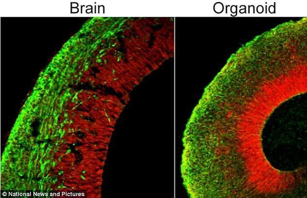 """研究人员利用人类皮肤细胞培育出了一些豌豆大小的""""大脑""""。图为发育中的人类大脑(左图)和""""类大脑""""(右图)的对比。"""