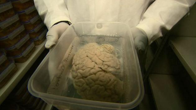 科学家呼吁人们捐出大脑供研究之用