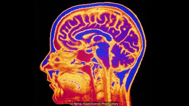 我们的大脑里发生着什么?