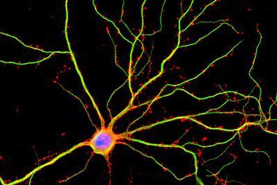 """大脑或比原预想活跃10倍:为""""似大脑计算机""""提供帮助"""