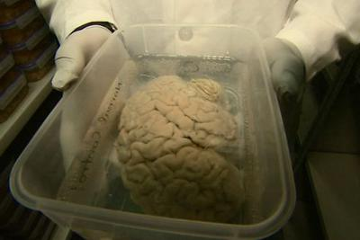 科学家呼吁人们死后捐出大脑供研究:缺少精神疾病大脑