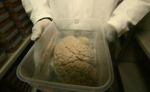 科学家呼吁人们死后捐出大脑供研究