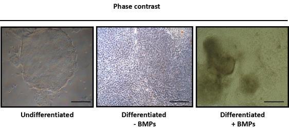 BMPs可誘導人類幹細胞的分化