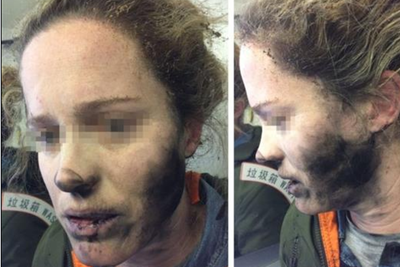 耳机爆炸把女子炸伤成黑人:苹果表示是电池问题