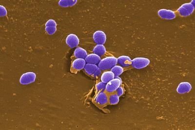 地球最早肠球菌出现于4.5亿年前奥陶纪时期