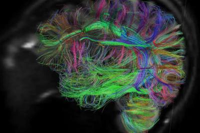 """记性不好?这其实是大脑""""抹去""""无用的记忆"""