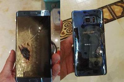 三星手机爆炸致贵州女童浅二度烧伤 家属索赔178万