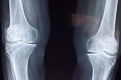受损骨骼可能在类似地球的重力条件下更快愈合