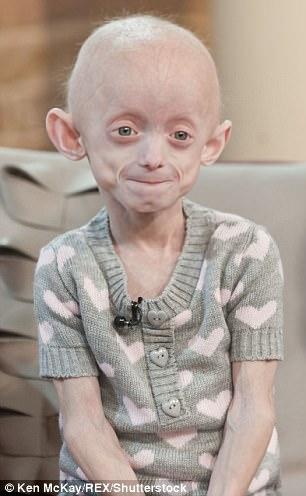 儿童早衰症会导致患儿迅速衰老、提前夭亡。图中患儿阿珊迪在2011年只有7岁,生理年龄却相当于80岁的老人。