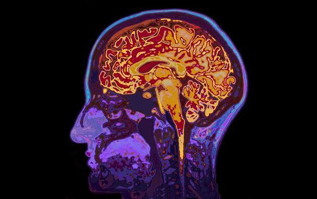 肥胖尤其是身体中部的肥胖,可能与大脑萎缩存在关联
