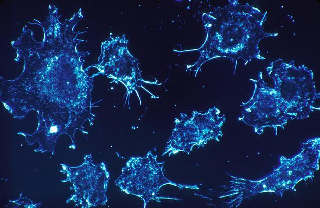 癌细胞竟会主动降解MHC-1类分子!难怪T细胞识别不出癌细胞