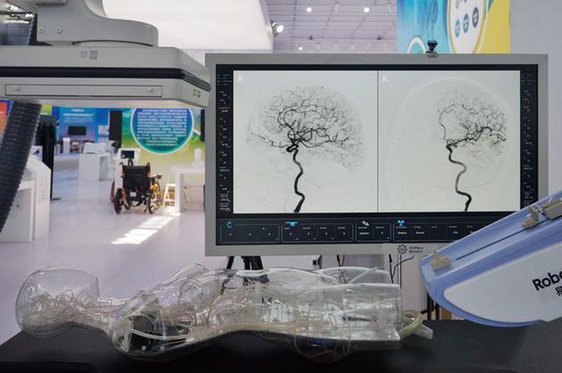 高精度微创血管介入手术机器人。新京报记者 郑新洽 摄