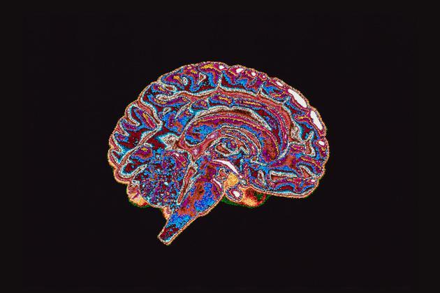 神經科學中性別差異的研究引發了許多爭議,相關的結論往往被誤用