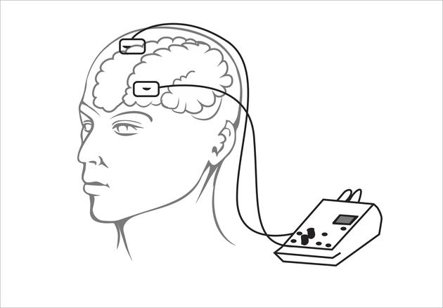 """他們的身體與兩個電極和1個9伏電池相連,電極對他們的大腦進行不到1分鐘的電擊。接下來他們沒有被電擊,這種叫做""""模擬刺激""""的裝置是爲了向測試者暗示當他們被電擊時已習慣了這種刺激。"""