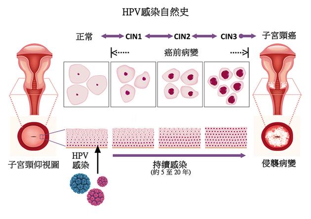 9价比4价更好?专家解答HPV疫苗6大疑问!