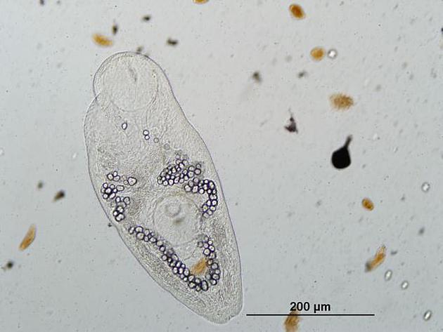 图为Ribeiroia ondatrae,是一种导致两栖动物肢体畸形的寄生虫。研究人员的保护计划中未收录任何可感染人类或家畜的寄生虫。