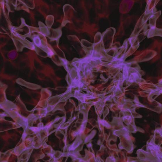 早期宇宙的过密区域会随着时间的推移不断增长,但它们的增长受到了限制,一方面是最初过密区域较小,另一方面是仍然存在着高能量辐射,阻止了结构的更快增长。形成第一颗恒星需要几亿到几亿年的时间,但在此之前,物质团块就已经存在了。