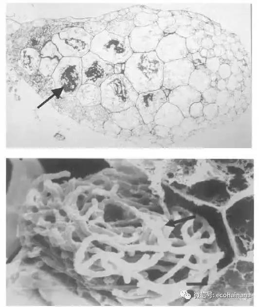 图7 小斑叶兰球茎(上)箭头所示为细胞内共生的菌丝;扫描电镜下的细胞内菌丝(下)(图片来自网络)