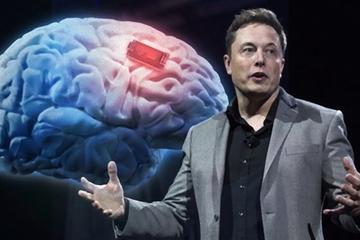 脑联网即将带来的智能大核爆