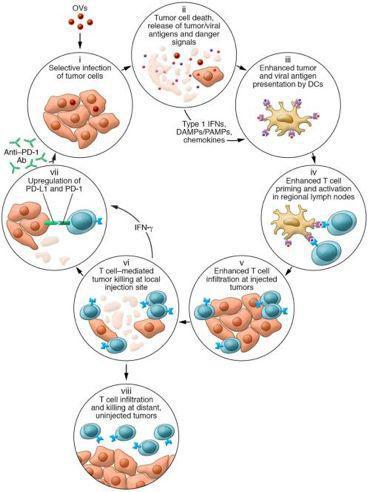 溶瘤病毒(OV)杀死癌细胞的进程