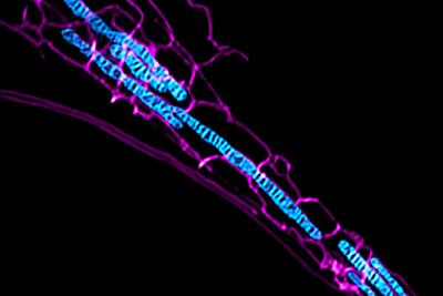 北大教授研发出超灵敏结构光超高分辨率显微镜