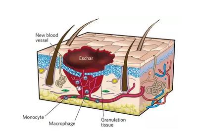 重编程得到皮肤干细胞 首次实现创口原位皮肤再生