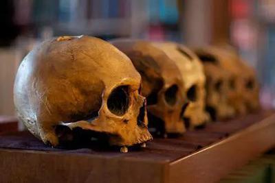 史前人类打开活人的头盖骨……要做啥?