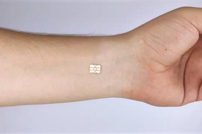俄男子手中植入5枚芯片:可徒手刷门禁