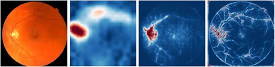 图:深度学习模型从视网膜图像中量化血红蛋白水平。血红蛋白水平是检测贫血的一项指标