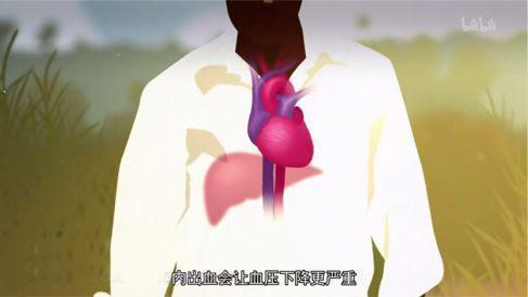 埃博拉病毒进犯导致内脏出血,纪录片《病毒猎人,安排下一次迸发》