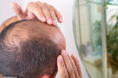 脱发治疗新突破?干细胞疗法培育出毛囊皮肤