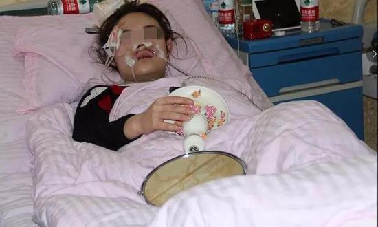 小艾受伤前后照片