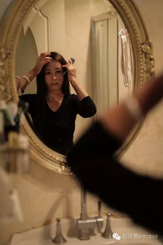 在母亲的帮助下洗头后,周岩梳理头发。