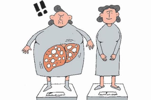 """天津:5个成人就有1人""""吃""""出脂肪肝"""