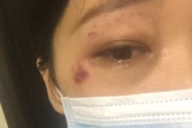 """天津一姐姐险被风筝""""夺命"""" 脸刮花眼镜被刮没"""