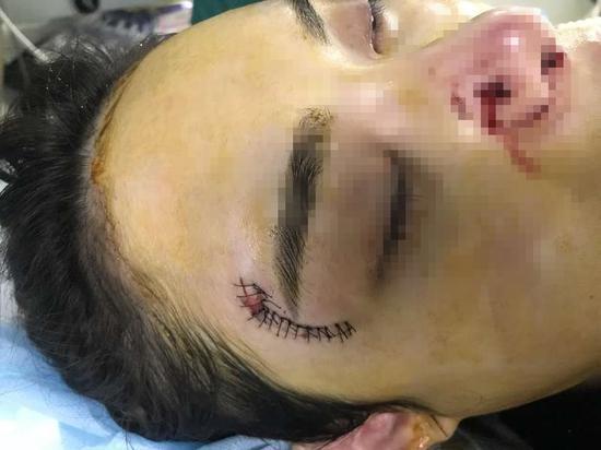 额头的疤有7厘米