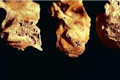 吃人也是人类历史的一部分:食人现象为何出现?