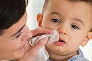 宝宝流鼻涕需不需要治疗?