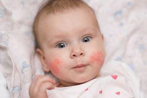 春天,寶寶最容易出的7種疹子 第三種最危險
