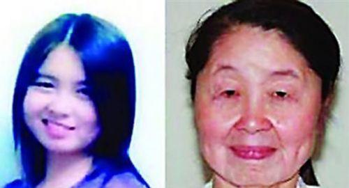 女孩患获得性皮肤松弛症前后容貌对比